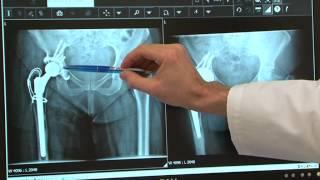 Orthopédie: Révision d'une prothèse de hanche