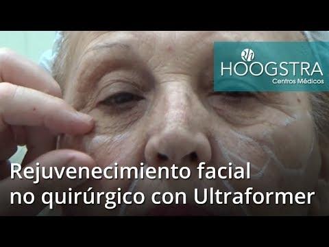 Rejuvenecimiento facial no quirúrgico con Ultraformer (18025)
