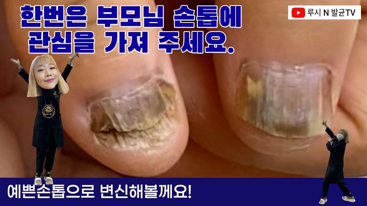 부모님 손톱 괜찮으신가요?