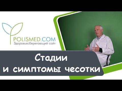 Стадии и симптомы чесотки: высыпания, зуд, температура. Запущенная чесотка