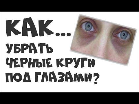 Тёмные круги под глазами у мужчин: причины возникновения