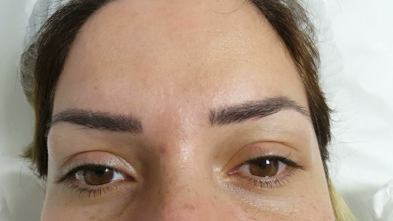 Healed Eyebrows Microblading after 1 session by El Truchan @ Perfect Definition