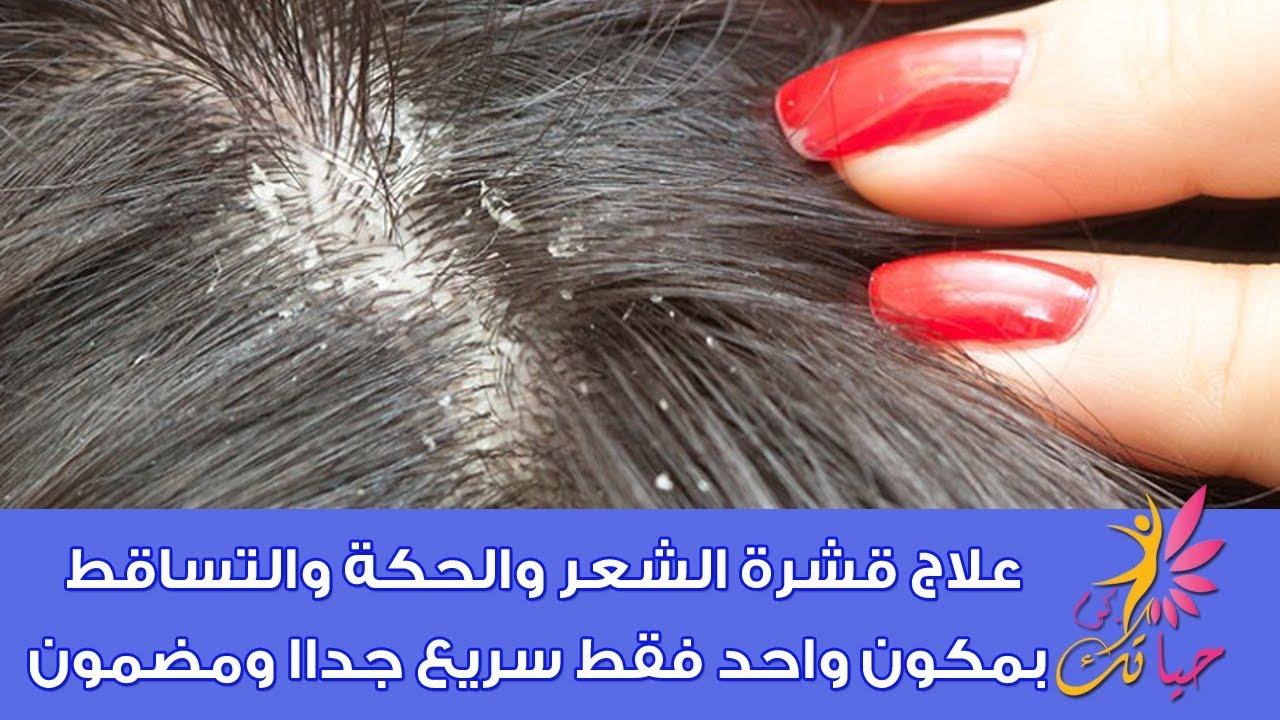 علاج قشرة الشعر والحكة والتساقط بمكون واحد فقط سريع جداا ومضمون علاج قشرة الراس بالليمون Youtube