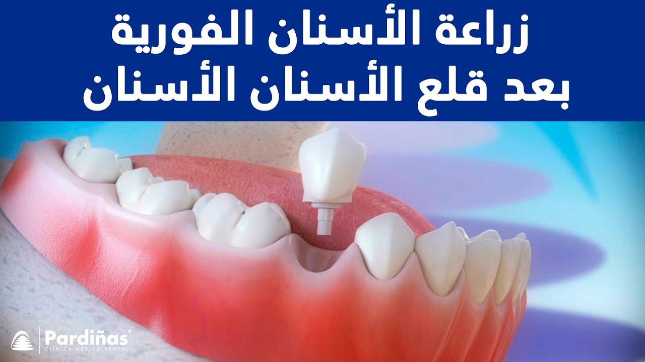 زراعة الأسنان الفورية بعد قلع الأسنان C Youtube
