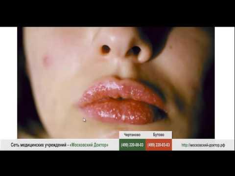 Заеды на губах: причины, лечение, профилактика