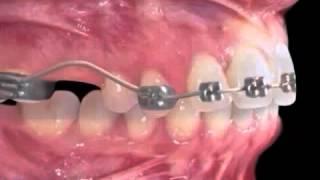 Gambar cover Distalização dos molares   vista lateral jones jig www bajaryoutube com]