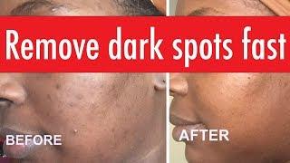 Skin care faves DARK SPOT removal & anti-aging