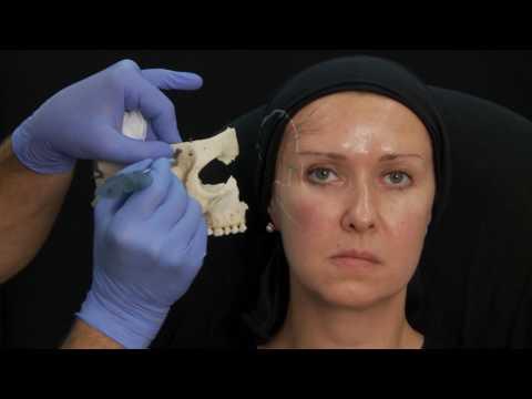 FACESCULPTURE botox acide hyaluronique correction asymétrie du visage