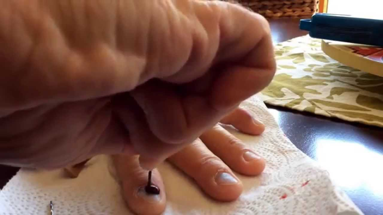 Pressure Relief (DIY) draining a smashed finger - YouTube