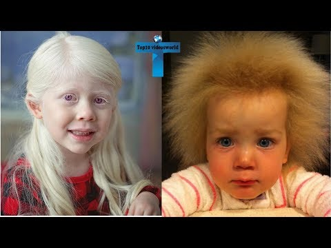 Top 10 Most Amazing And Unusual Kids In The World #5