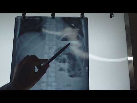Nhận định hình ảnh hơi trên x quang bụng