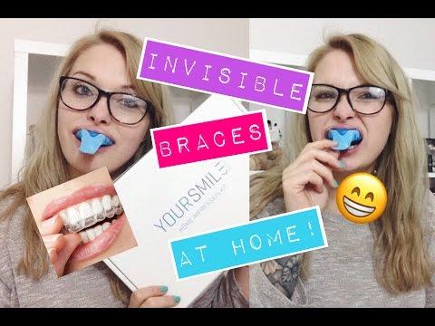 Invisible braces at home impressions kit kjcxox youtube invisible braces at home impressions kit kjcxox solutioingenieria Images