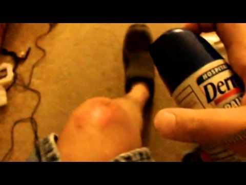 Dermoplast Spray cura las heridas por el sol o rozaduras