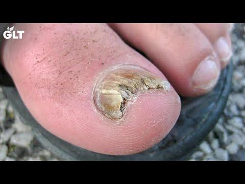 5-simple-home-remedies-for-treating-toenail-fungus