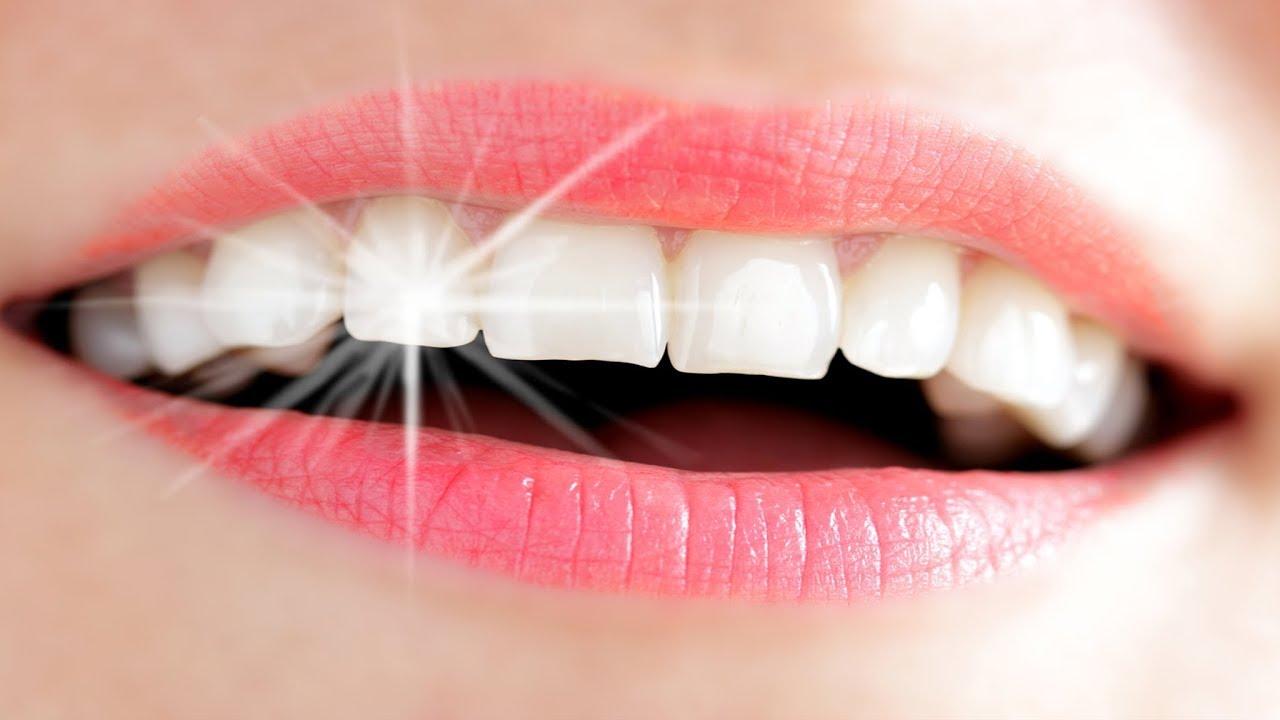 نتيجة بحث الصور عن أسنان بيضاء