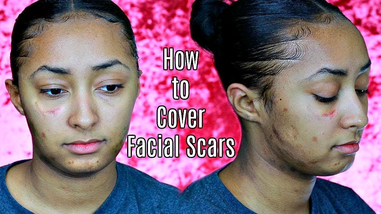 to cover scars How facial