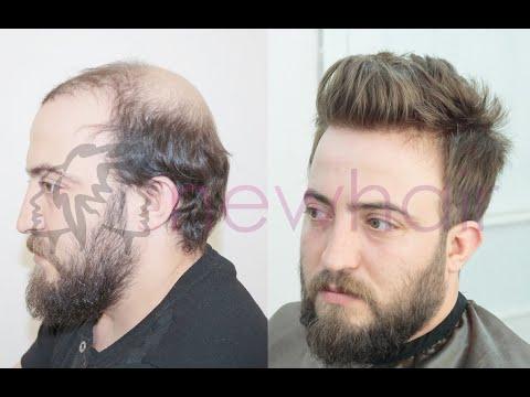 """Protez Saç Tedavisinde """"ENJEKTE SİSTEM"""" Farkı"""