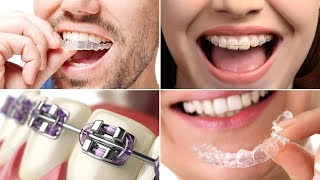 Braces Have Changed, From Metal to Tooth-Colored to Clear
