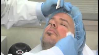 Curing Adult Acne Thumbnail