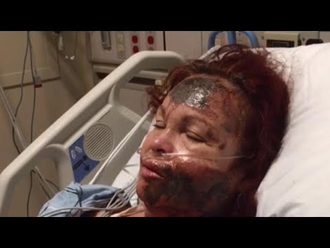 Woman Who Claimed She Was Attacked With Acid Actually Burned Herself: Cops