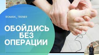 Hallux valgus 6 упражнений 1 при косточки на большом пальце