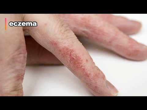 cellulitis!-what-is-it?-how-to-treat?-mrsa,-staph,-cellulitis-&-popping-pimples