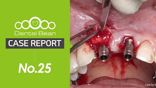 (ENG) Upper anterior immediate implant placement \u0026 immediate loading with DENTIS SQ fixture