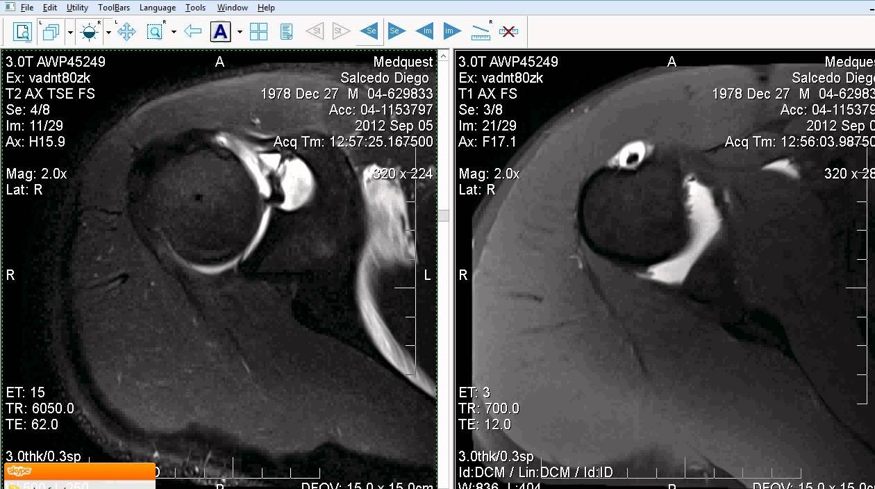 resonancia magnetica hombro derecho 9 5 2012 2 08 18 PM - YouTube