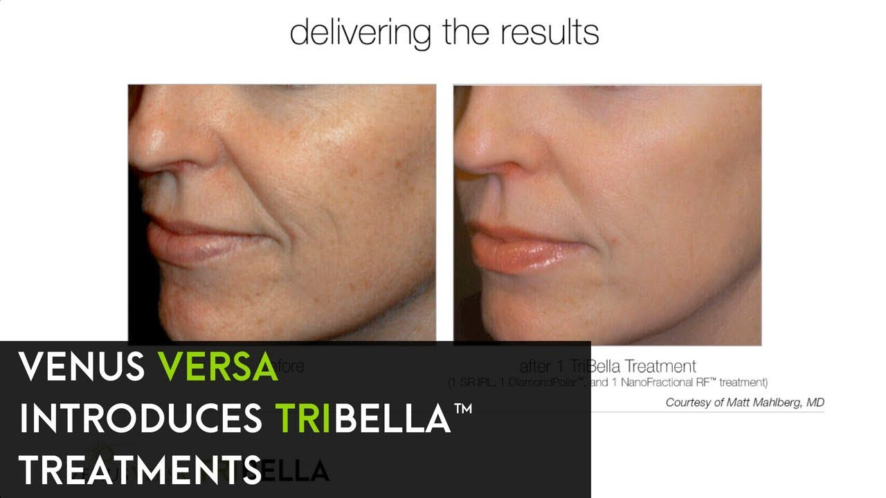 TriBella™ Treatments by Venus Versa™