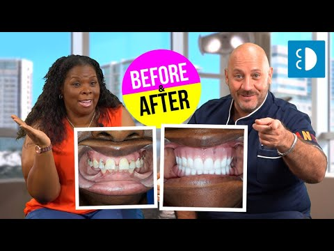 alicia's-testimonial-with-before-and-after-with-snap-in-dentures!