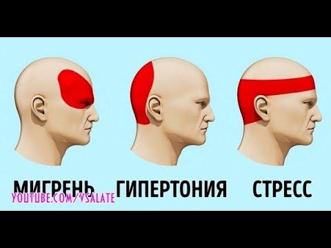 За 5 минут избавиться от головной боли без таблеток