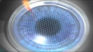 Eye LASIK Austin - iLASIK - Surgery Step 1