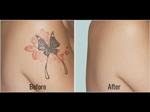 Amazing Natural Tattoo Removal Before And After Results - YouTube