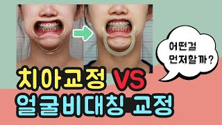 치아 교정과 얼굴비대칭 교정 같이 할수 있을까? (치아…