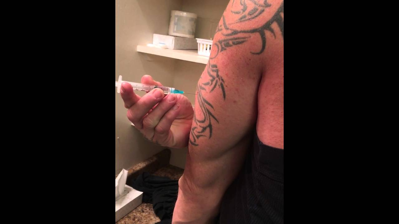 Triceps steroid injection list of topical steroids