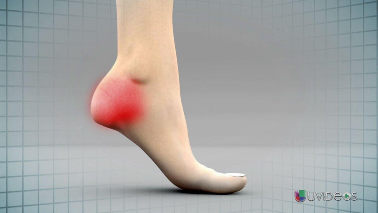 dolor en el talon de un pie