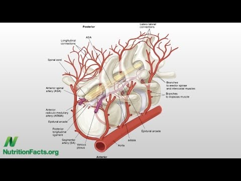 Cholesterol and Lower Back Pain