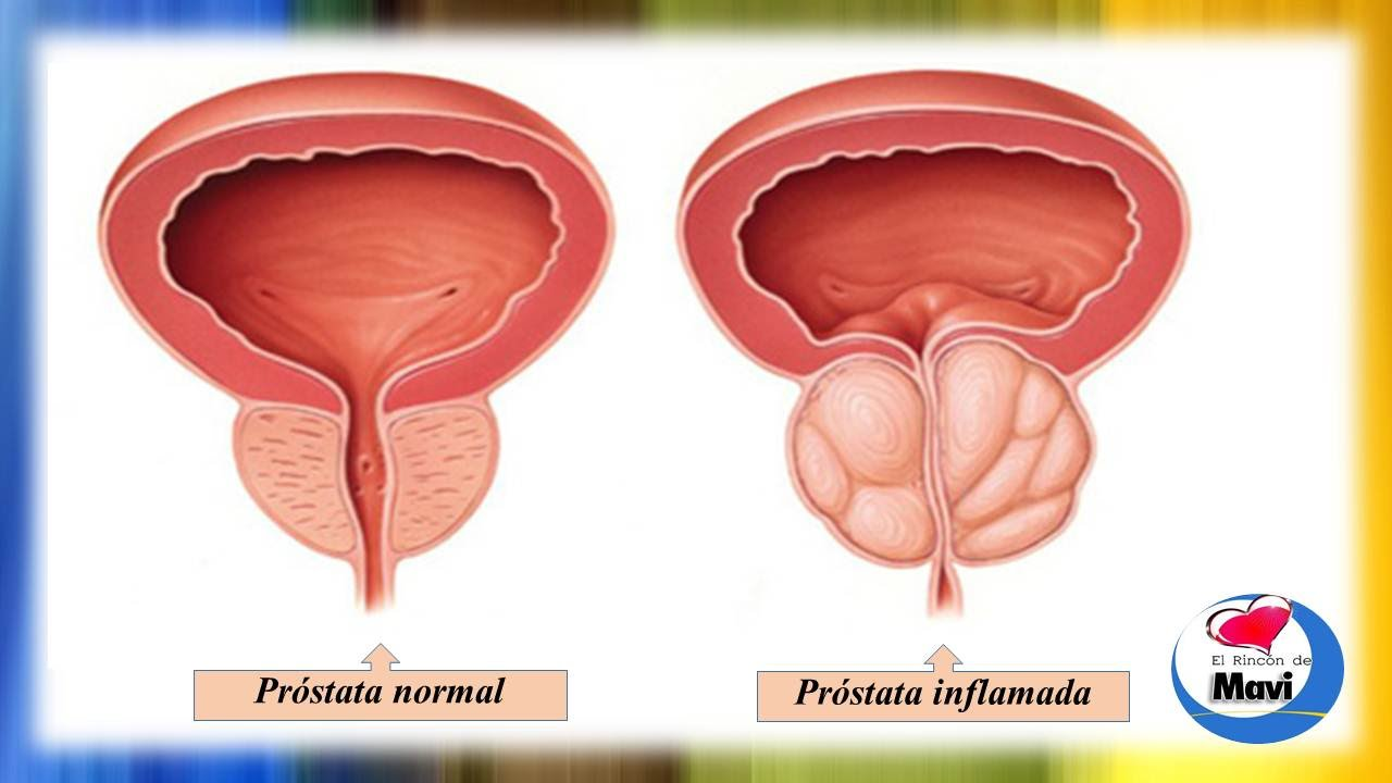 medicamentos naturales para inflamacion de prostata