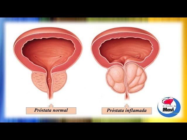 prostata ingrossata a 60 anni
