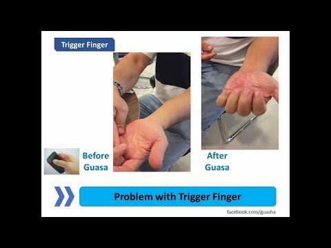 Guasa Trigger Finger Problem - Mandarin English