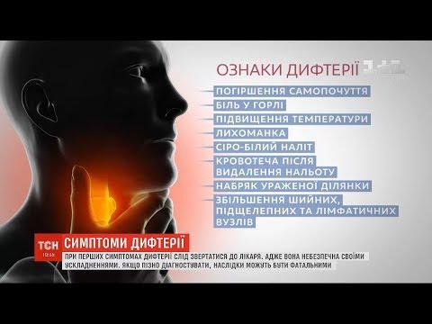 Як розпізнати симптоми дифтерії та чи можна запобігти загрозі поширення хвороби