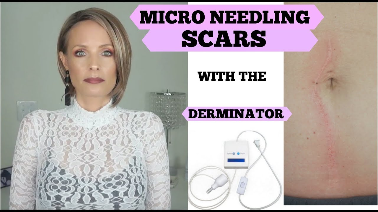 Micro Needling With The Derminator Micro Needling Scars