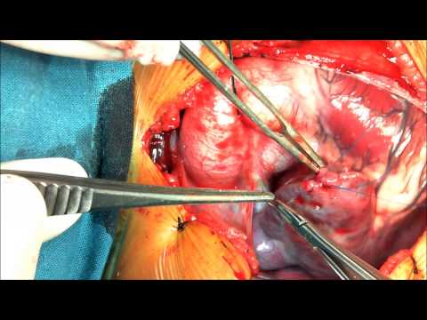 Congenital Heart Surgery , Performed By Prof. Dr. Adel Al Gamal , Mansoura Hospitals.