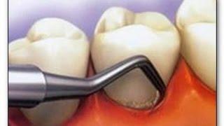 Методы удаления зубного камня:  механический, ультразвуковой, лазерный, air flow, химический(Оглавление: 1. 0:01 Способы удаления зубного камня 2. 0:36 Механическое удаление зубного камня 3. 1:26 Чистка..., 2015-08-10T15:48:20.000Z)