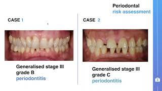 Advanced periodontal disease.