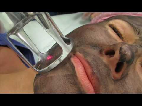 Чистка лица / Отзывы и цены — Ультразвуковая чистка лица