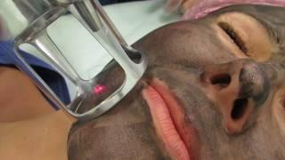 Лазерная нано-чистка лица