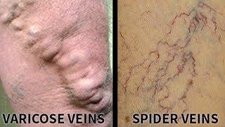 All about varicose veins | Usapang Pangkalusugan