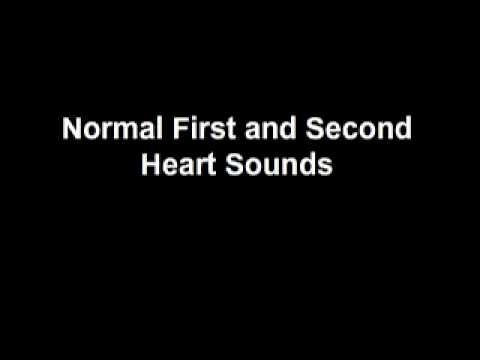 Normal Heart Sounds