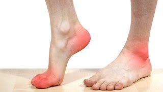 Prendre soin de ses pieds : prévenir l'apparition de durillons
